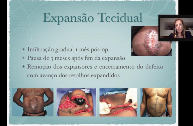 Dra. Catarina Diniz- Cirurgia Plástica